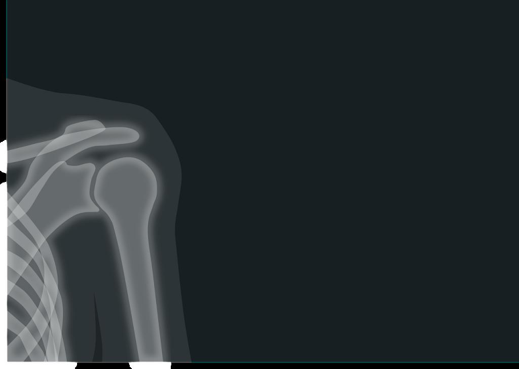 レントゲン・X線撮影のイメージ画像